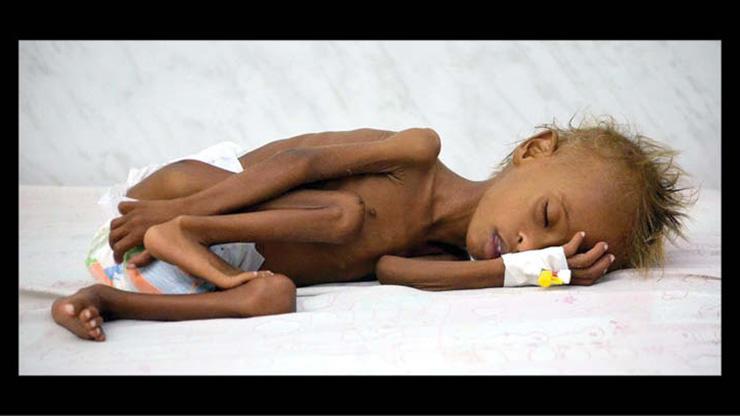 عکس های تکاندهنده از وضعیت اسف بار کودکان یمنی