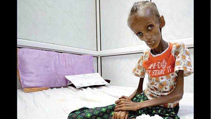 وضعیت اسف بار کودکان یمنی