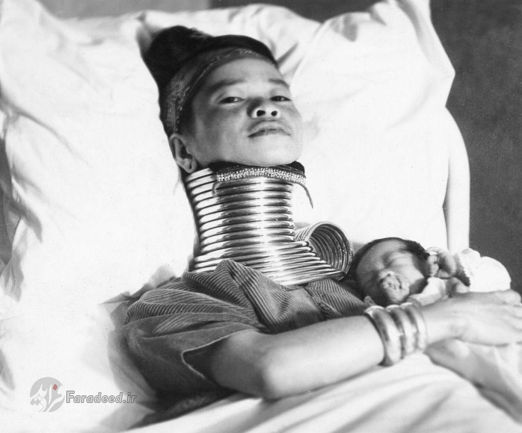 زنانی با گردن زرافه ای
