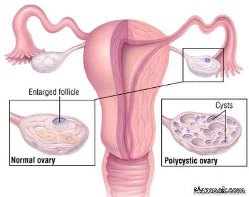 علائم تنبلی تخمدان و روش های درمان