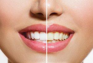 علل زرد شدن و تغییر رنگ دندان
