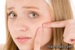 راه های درمان سریع جوش صورت و آکنه
