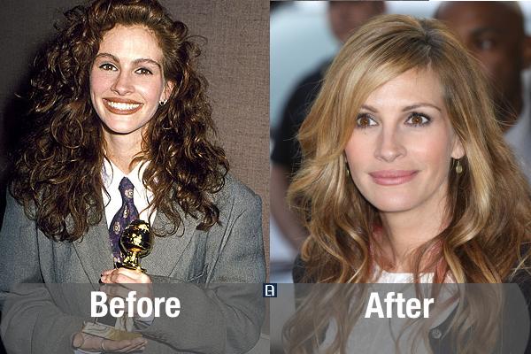 10 ستاره زیبا و مشهور هالیوودی قبل و بعد از عمل زیبایی + تصاویر