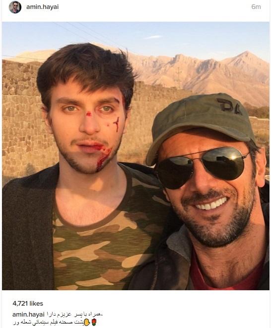 عکس خون آلود پسر امین حیایی