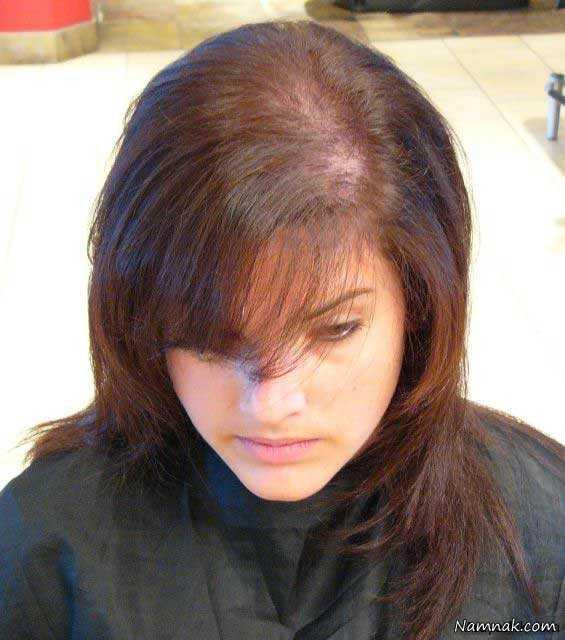 سیاه دانه برای درمان برای درمان ریز ش مو