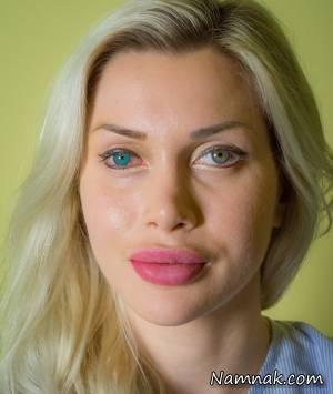 عمل زیبایی سومین مدل فیلم های مستهجن در تهران