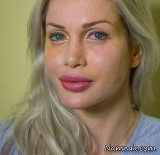 عمل زیبایی سومین مدل فیلم های مستهجن در تهرانعمل زیبایی سومین مدل فیلم های مستهجن در تهران