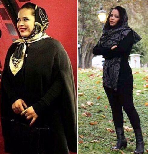 ملیکا شریفی نیا قبل و بعد از کاهش وزن