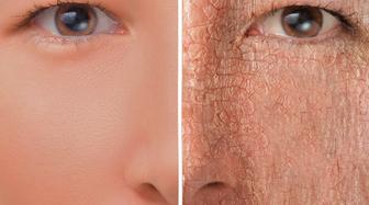 بهترین راه های درمان خشکی پوست
