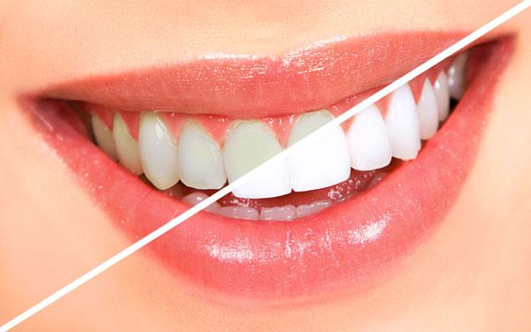 بهترین روش های سفید کردن دندان ها
