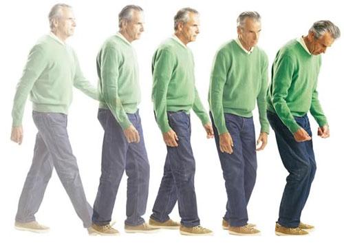 راههای جدید درمان بیماری پارکینسون