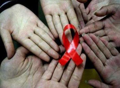 چگونه با بیماری HIV در زندگی کنار بیاییم؟