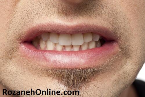 سلامت دندانی و دندان قرچه
