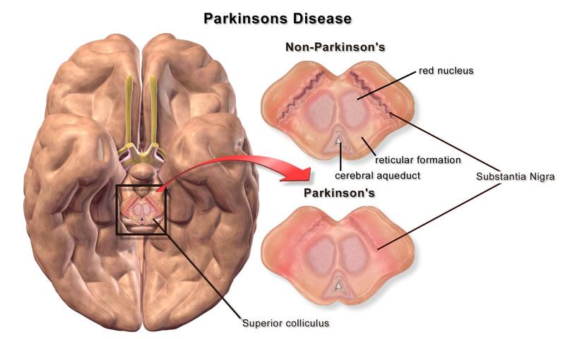 بحران انرژی در سلول های مغزی مسبب بیماری پارکینسون