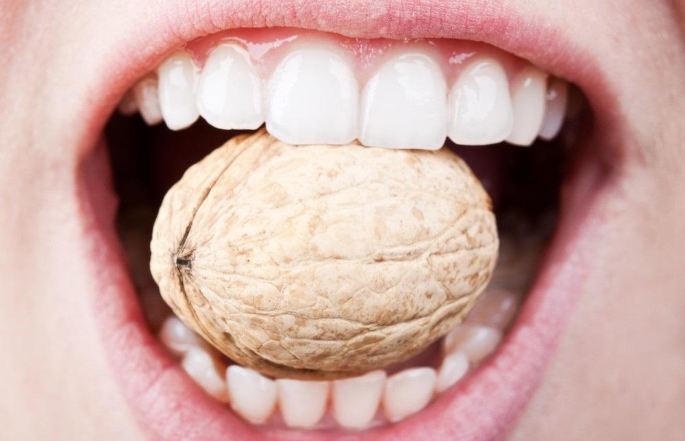مراقبت از دندان ها در مقابل آجیل های نوروزی