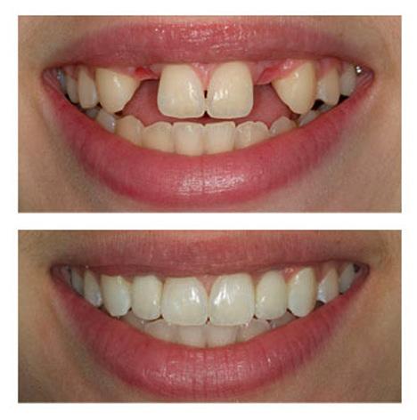 بررسی مشکلات و عوارض ایمپلنت دندان