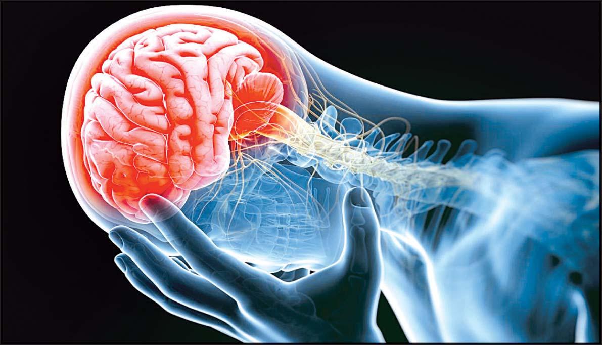 افزایش سکته مغزی با بارداری سخت و پیچیده