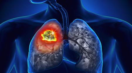 آیا بیماران مبتلا به هپاتیت B به سرطان کبد مبتلا میشوند؟