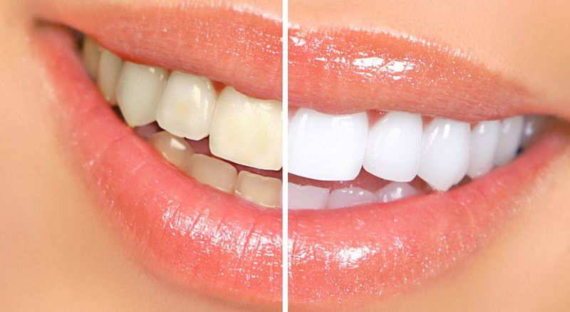 افزایش سفیدی دندان با برخی روش ها