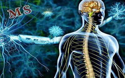 کشف جدیدترین درمان ها برای بیماری ام اس