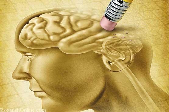 موثرترین و بهترین درمان برای بیماری آلزایمر