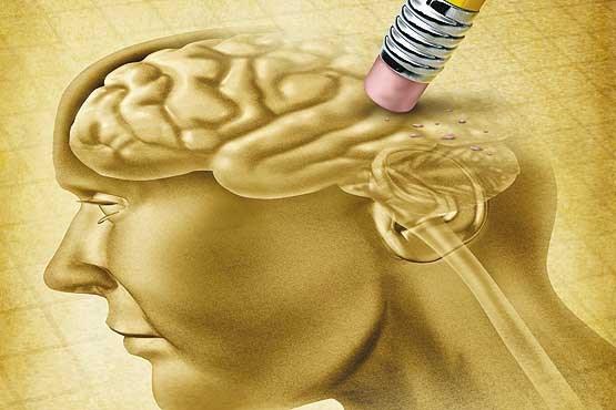 آیا کمبود وزن ارتباطی با بیماری آلزایمر دارد؟