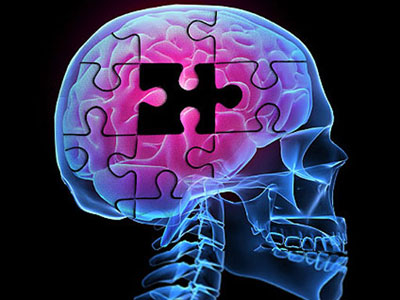 آیا تنهایی موجب ابتلا به آلزایمر می گردد؟