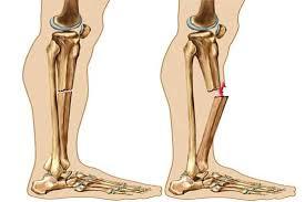 از علائم پنهانی پوکی استخوان چه میدانید؟