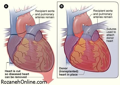 پیوند قلب و نجات بیماران قلبی