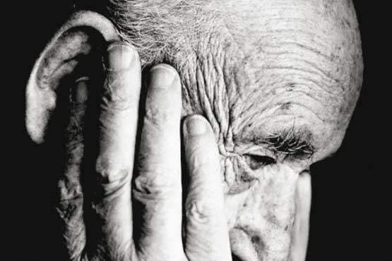 ارتباط بین آلزایمر و کمبود کروموزوم Y