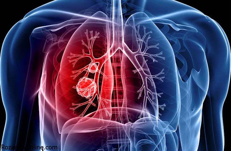 علائم سرطان ریه همراه با درد قفسه سینه