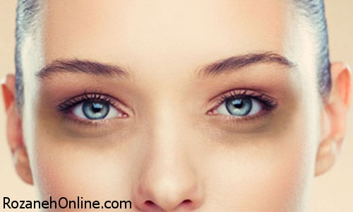 درمان حلقه های تیره زیر چشم با آسانترین روش خانگی