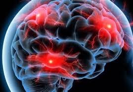 تحریک بیماری آلزایمر با ملتهب شدن مغز