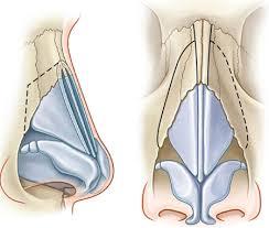 امکان ترمیم زانو با استفاده از غضروف بینی