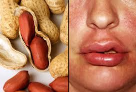 چه ارتباطی بین آلرژی غذایی با بیشفعالی سیستم ایمنی وجود دارد؟