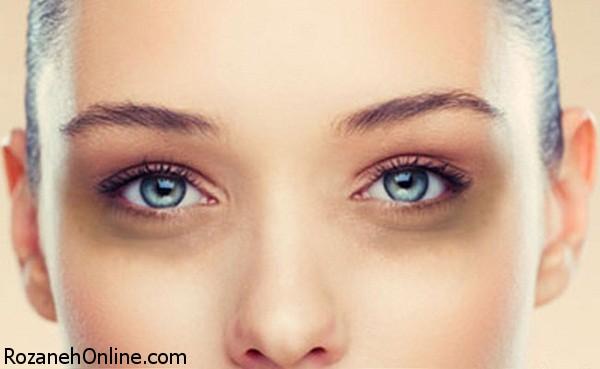 از علت تا درمان کبودی دور چشم
