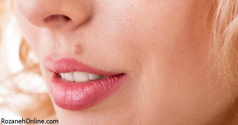 سرطان پوست را با این 5 نوع خال بشناسید!