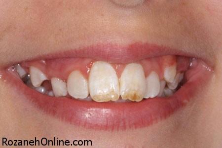 ایجاد لک دندان بعلت زیاده روی در مصرف 9 مواد غذایی