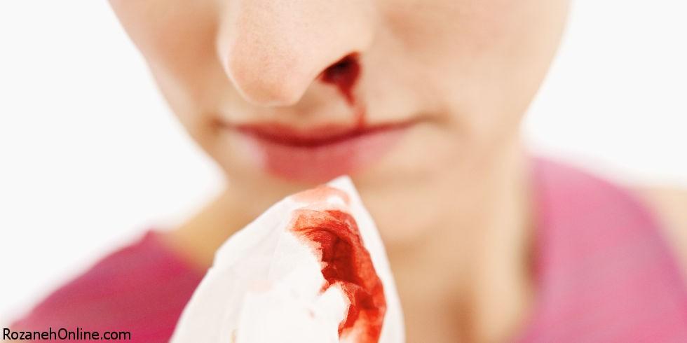 خونریزی از سوراخ بینی