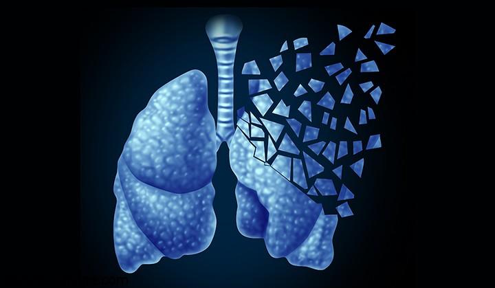شدت یافتن سرطان ریه با آلودگی هوا