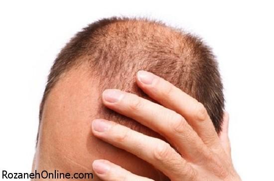 علت اصلی ریزش مو در زنان و مردان به چه عاملی بر میگردد؟