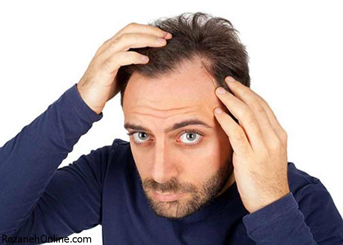 علت ریزش مو مردان چیست؟آیا درمانی وجود دارد یا خیر؟
