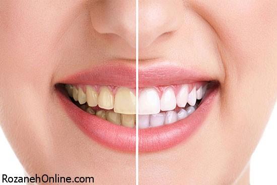سفید کردن دندان ها بوسیله راههای کم هزینه خانگی
