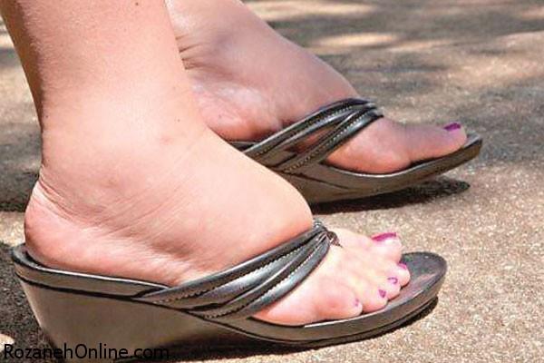 تورم پاها به چه علتی ایجاد می گردد؟