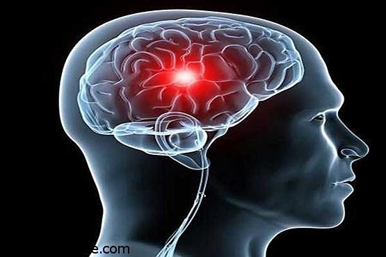 ارتباط بی حس شدن بدن با تومورهای مغزی