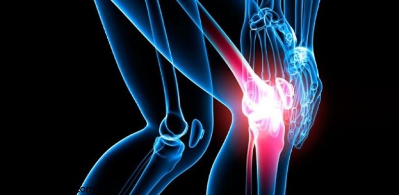 کاهش عوارض آرتروز زانو در میان بانوان