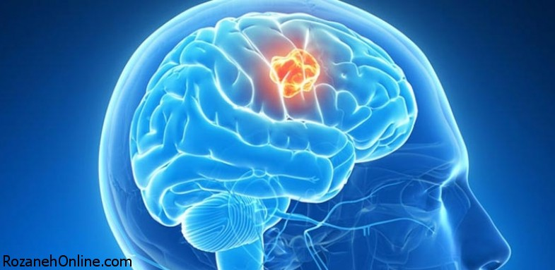 بررسی علل شکلگیری تومورها