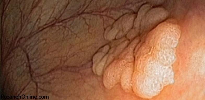 توضیحاتی پیرامون سرطان کولورکتال