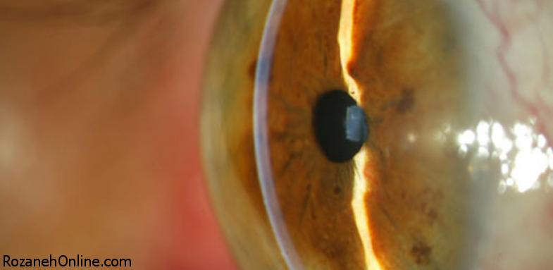 بیماری آبسیاه مشکلی جدی برای بینایی مردان