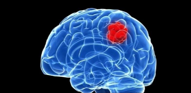 هشدارهای بدن ناشی از تومور مغزی